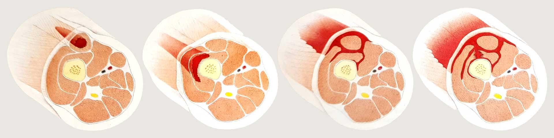 Графика изобразяваща схематично Superficial Intramuscilar Haematoma